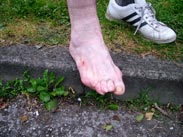 Alan Doran's toes... soon to be featured in a horror film